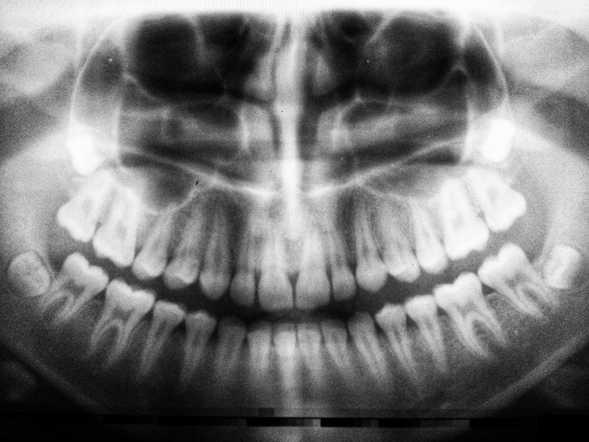 Wisdom Teeth Extractions Every Smile Mesa Dentistry
